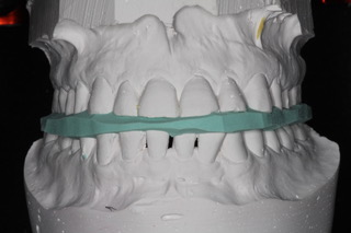 Figure 2. Showing putty within the teeth.