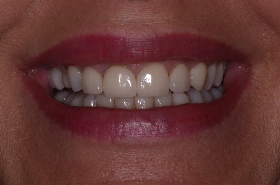 Figure 1. Before full smile
