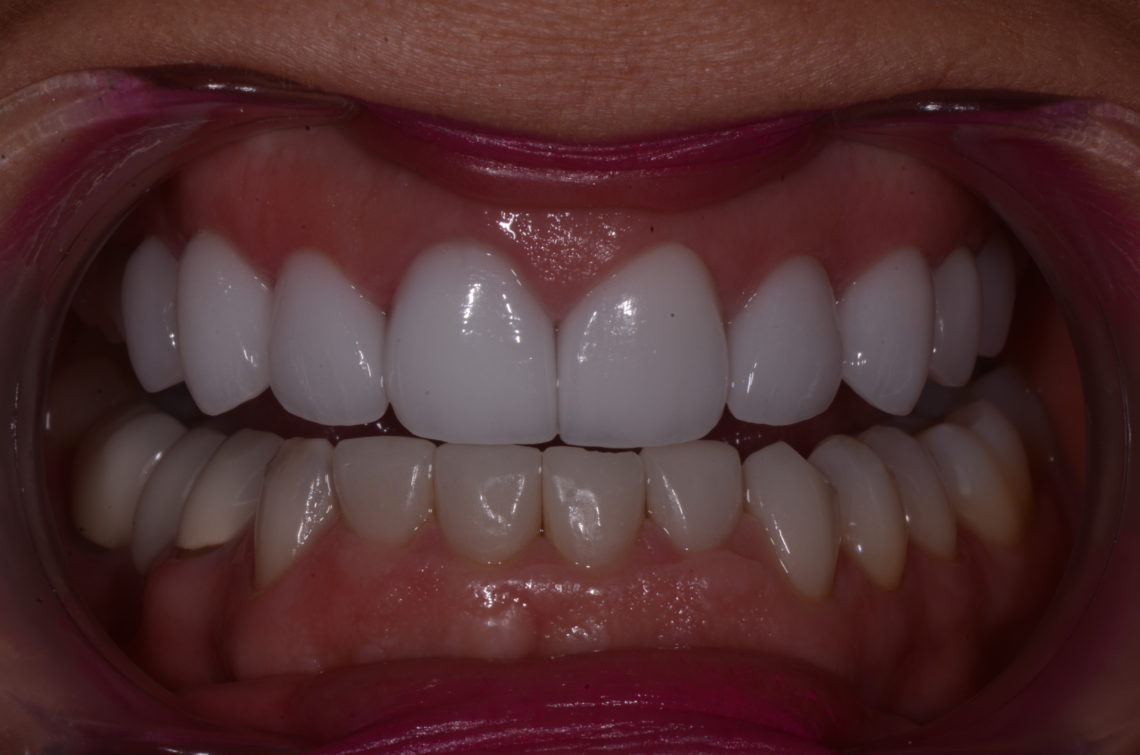 Figure 4. Upper final restorations